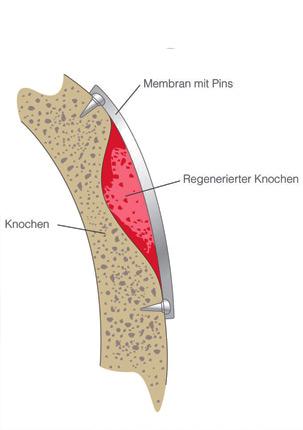 Implantat Knochenaufbau