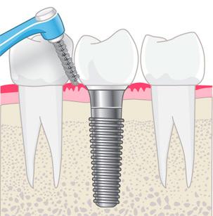 Implantat - Pflege und Kontrolle