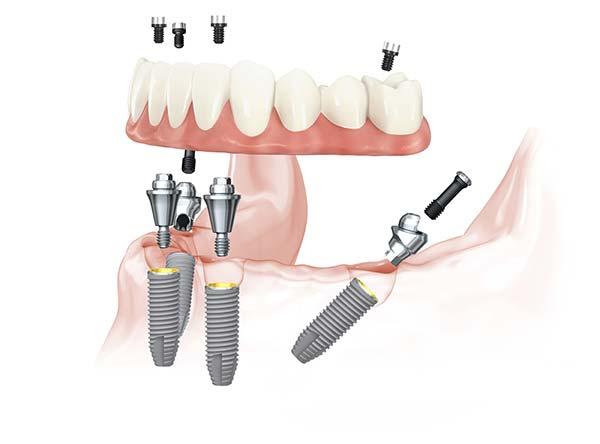 Versorgungen für Zahnlose Kiefer